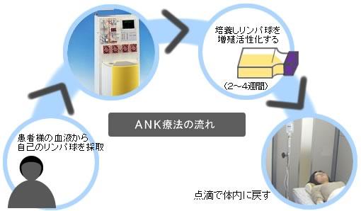 ANK免疫細胞療法